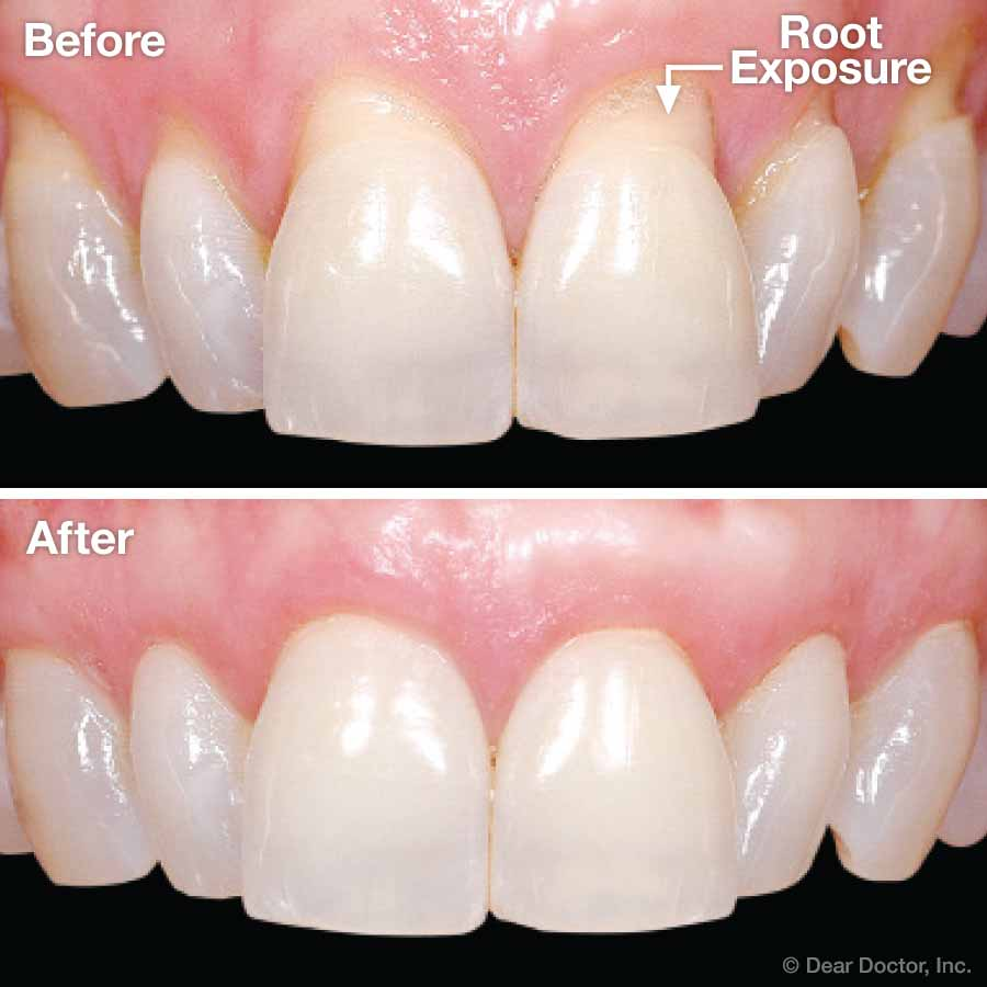 Gum Grafting before and after.