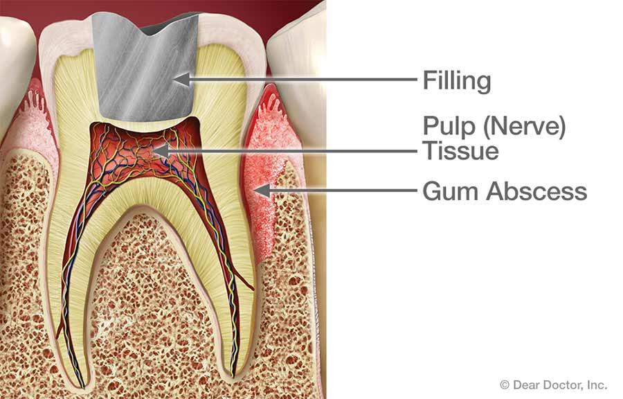 Gum abscess.