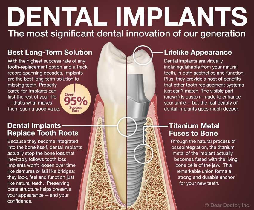 Dental Implants 101.