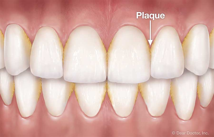 Plaque between teeth.