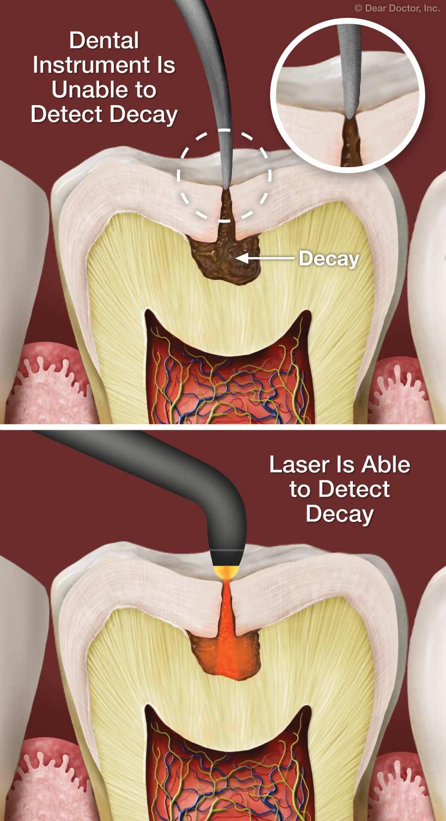 Laser decay diagnosis.