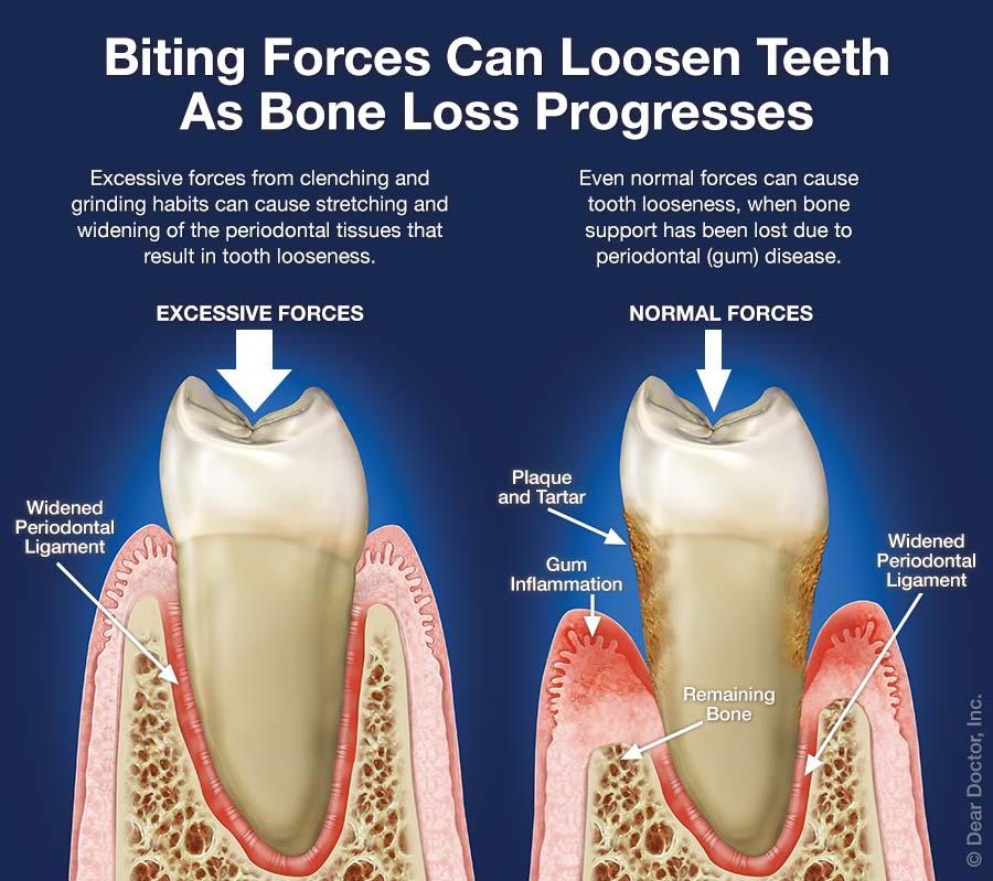 Biting forces can loosen teeth as bone loss progresses.