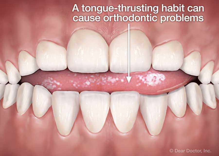 Tongue thrusting habit.