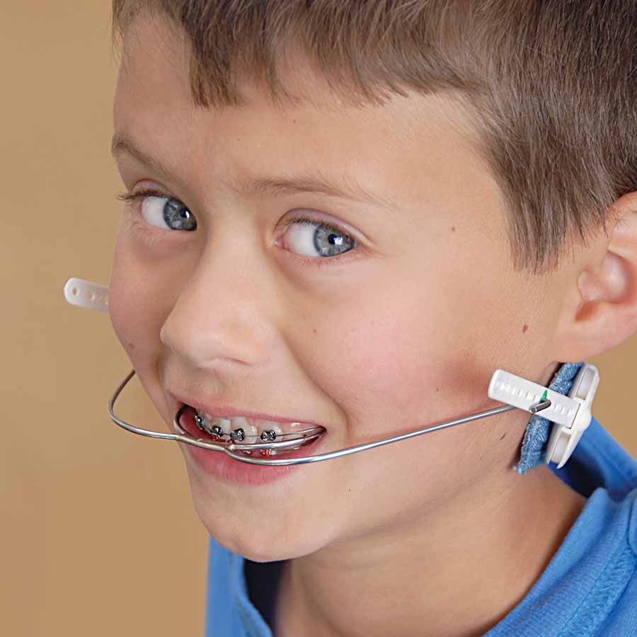 Child wearing orthodontic headgear.