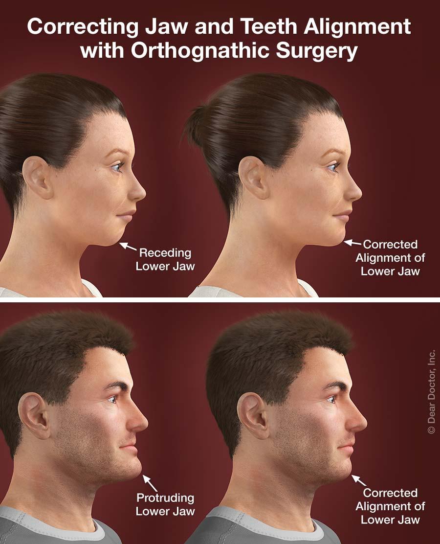 Orthodontics and surgery.
