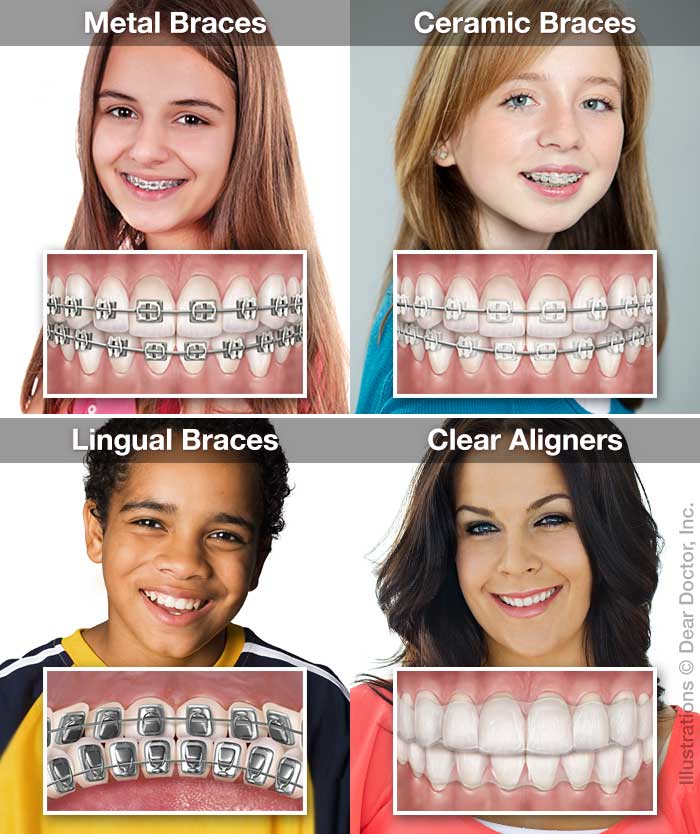 Orthodontic Appliance Options.