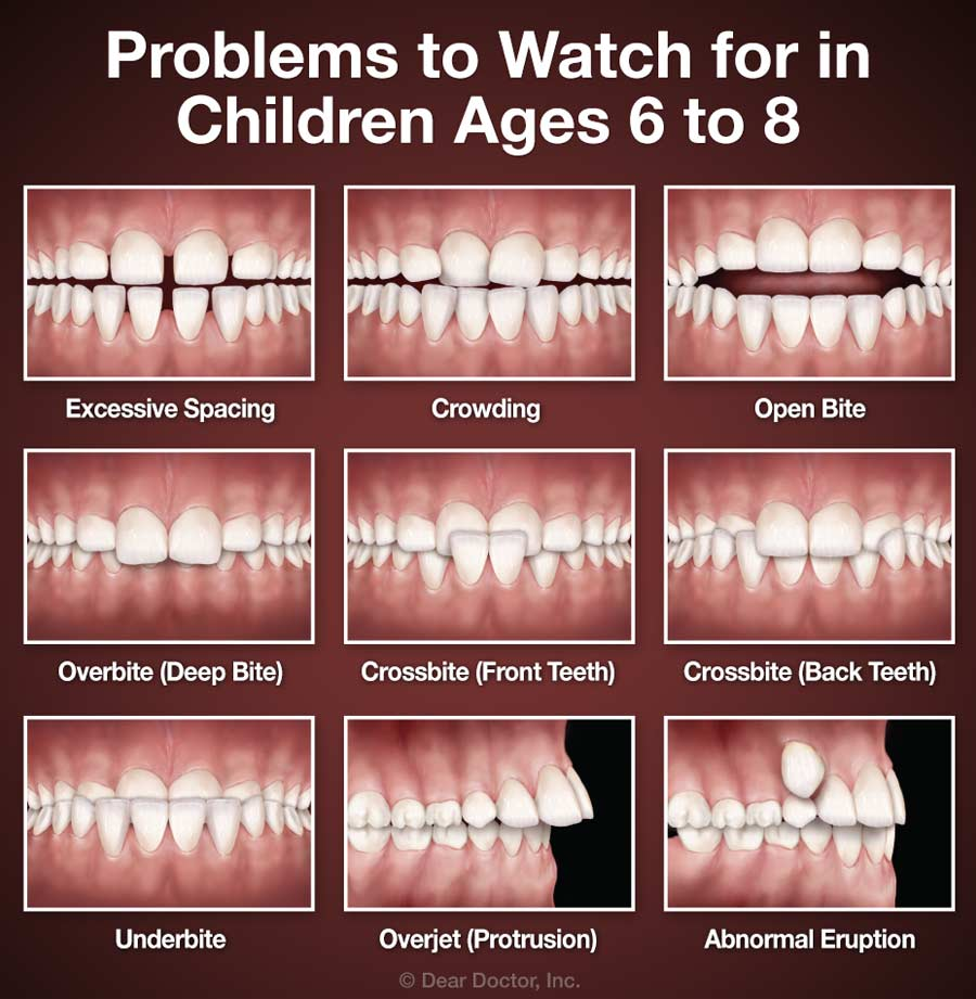 A chart depicting the different types of orthodontic problems kids and adults may have.