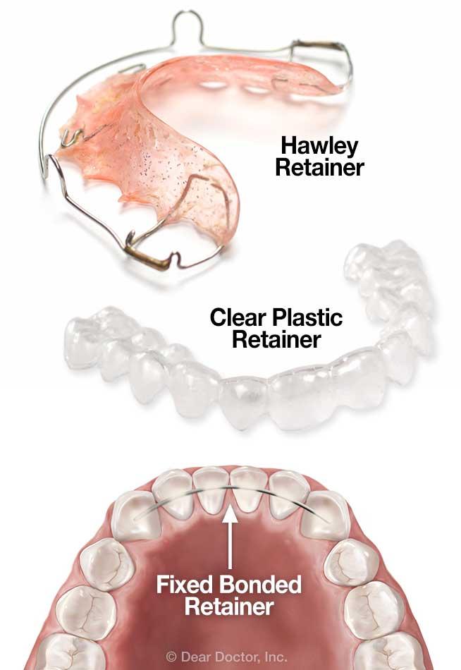 Post Orthodontic Care