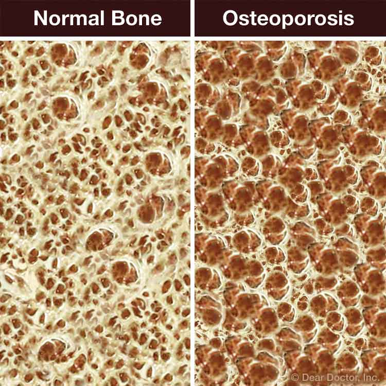 Normal bone vs osteoporosis.