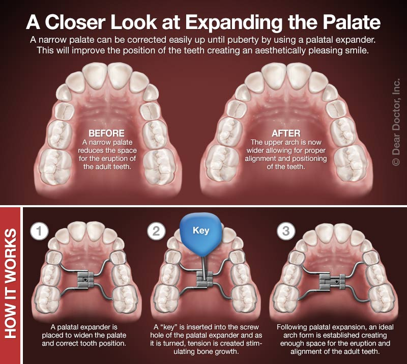 How palatal expanders work.