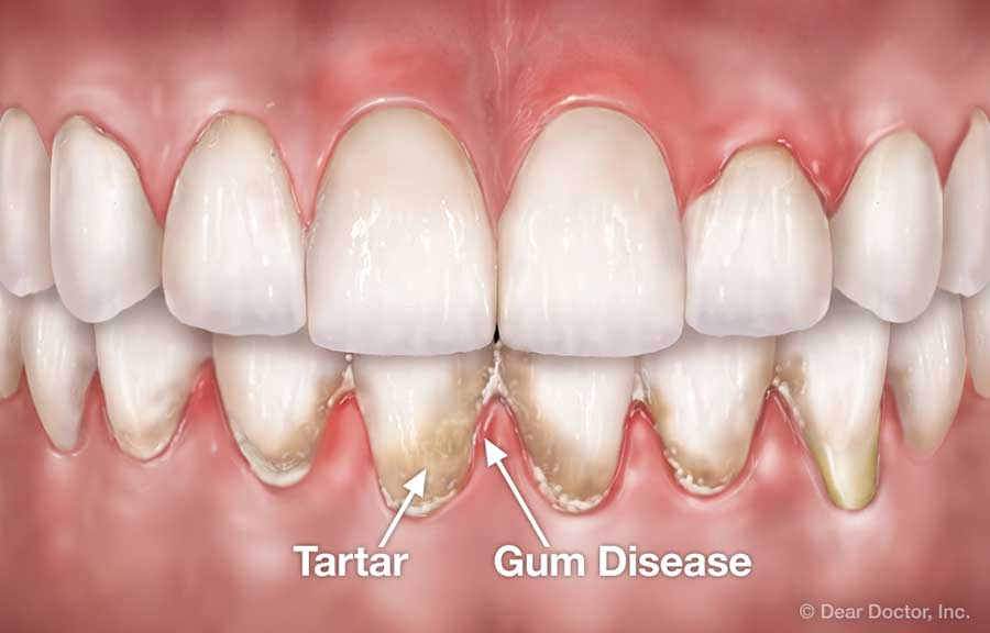 Periodontal Flap Surgery