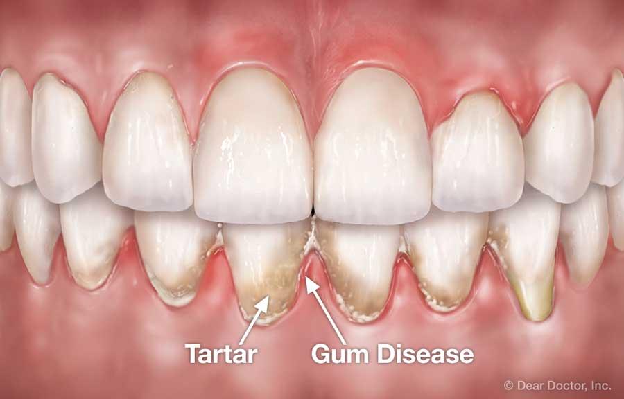 Periodontal Flap Surgery Coastal Periodontics Implant Dentistry P C Mobile Alabama