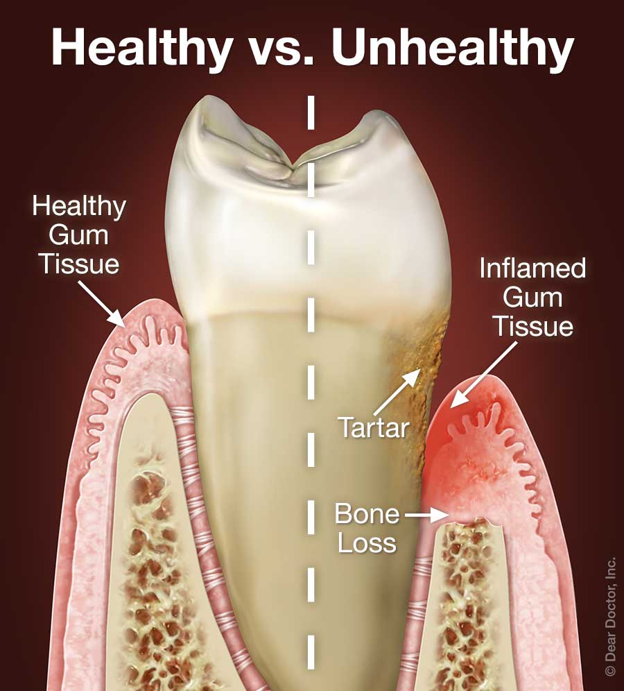 Periodontal Gum Disease | Wake Forest Smiles Family Dentistry | Wake