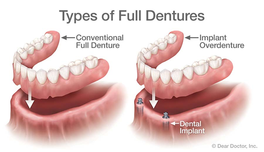 Types of Full Dentures.