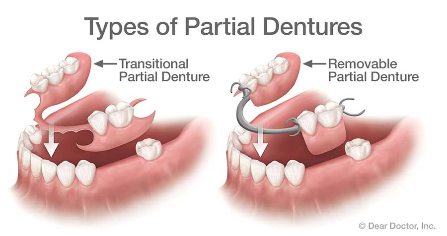 Types of Partial Dentures.