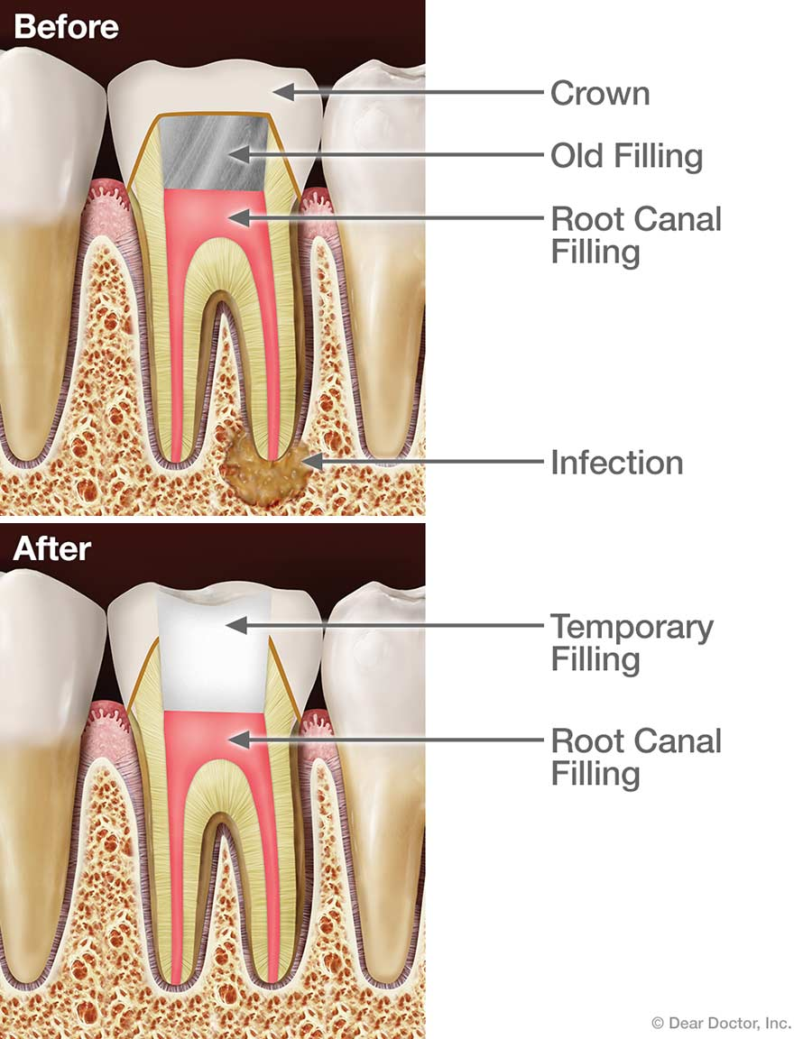 root-canal-retreatment