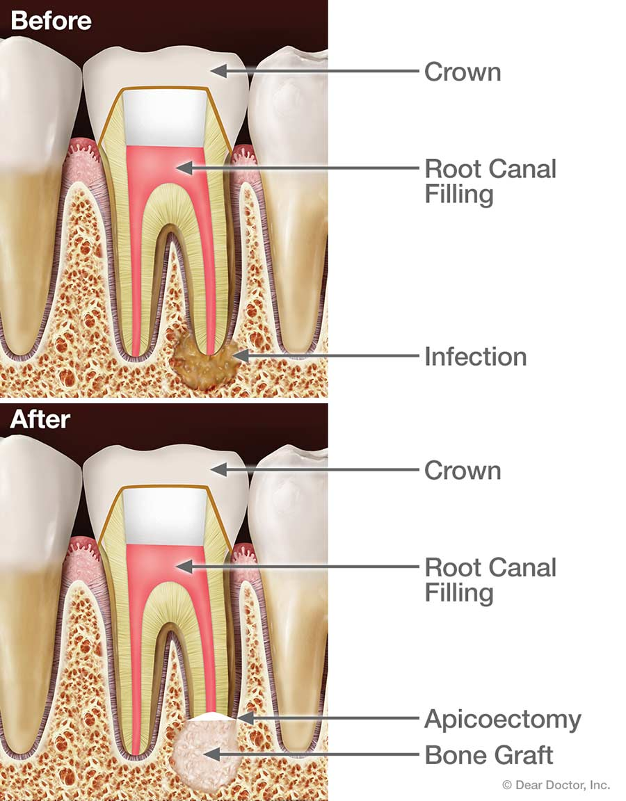Root canal surgery apicoectomy.