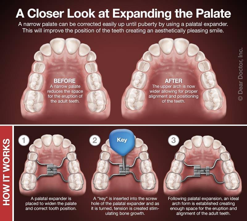 How palatal expanders work.