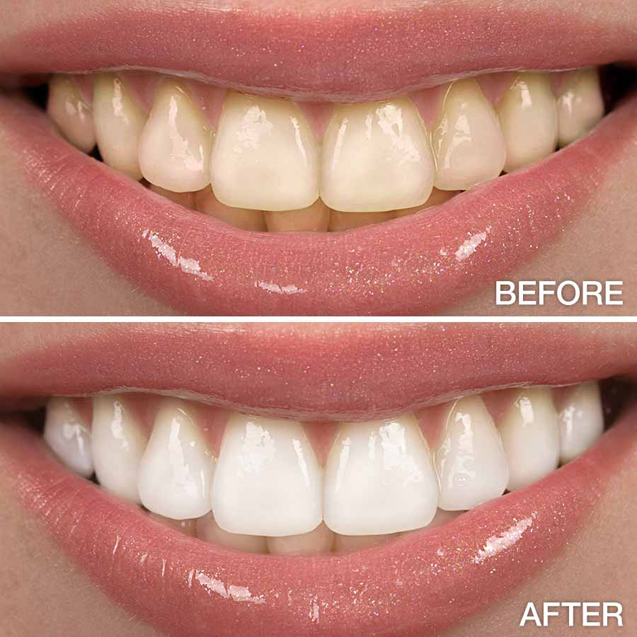 Teeth Whitening Dr George P Cerniglia Metairie Louisiana