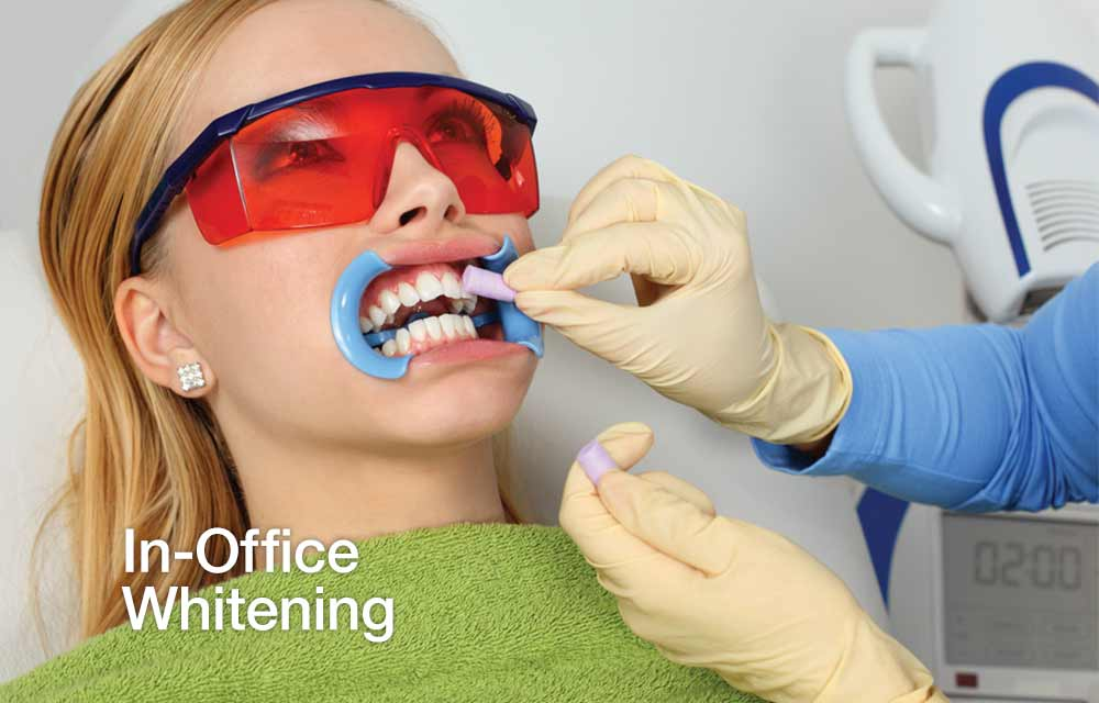 In-Office Teeth Whitening.