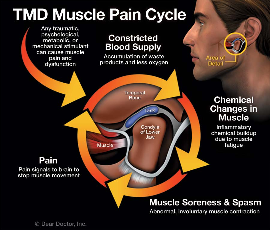 TMD Muscle Pain Cycle.