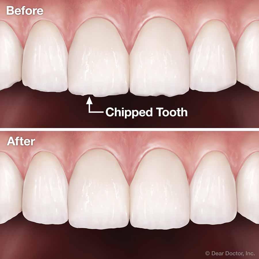 tooth contouring reshaping discover orthodontics brampton ontario