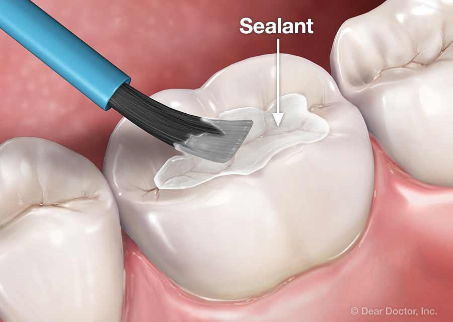 Dental Sealants.