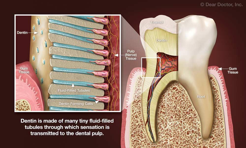 Tooth Sensitivity Northwest Dental Glyndon Maryland
