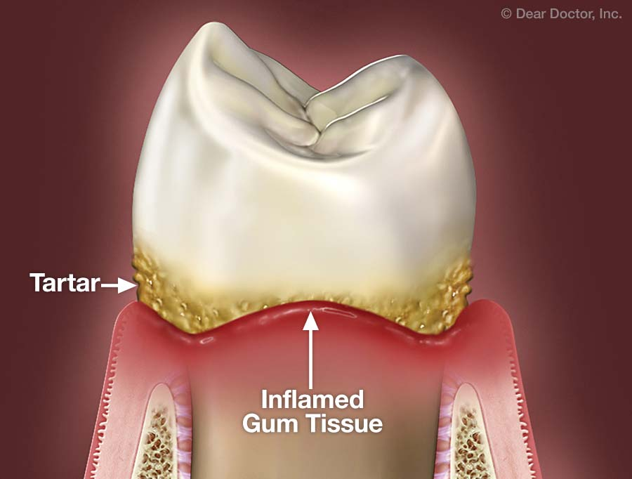 Treating Gum Disease without Surgery | West Gate Dental