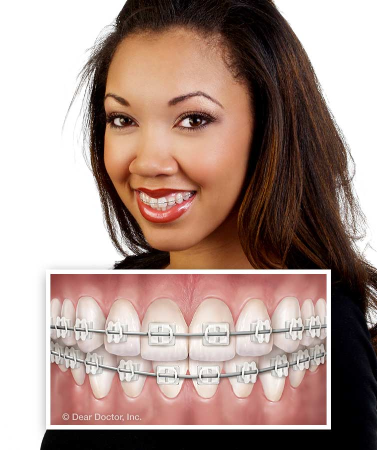 improve your smile transform your life a guide to orthodontics for adults