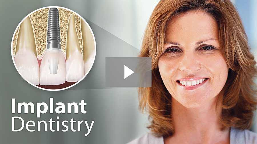 Implant dentistry video