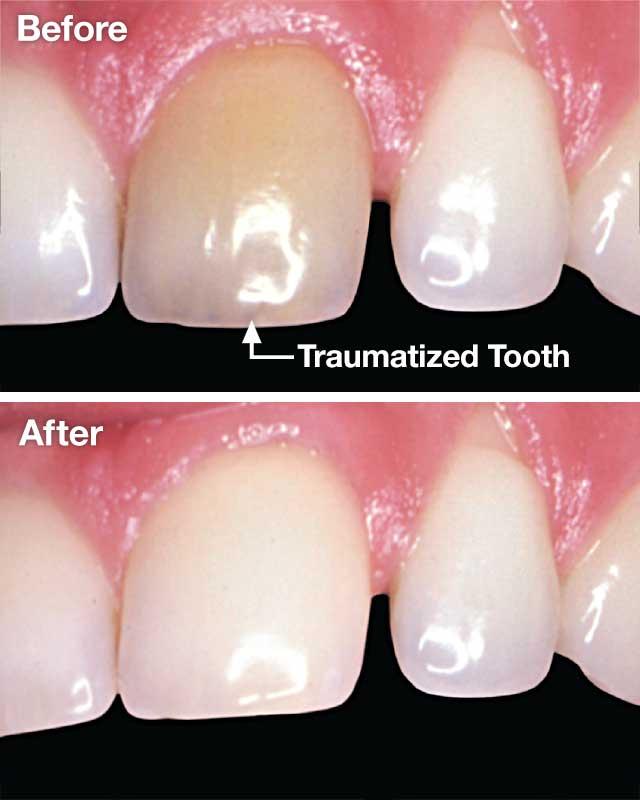 Whitening traumatized teeth.