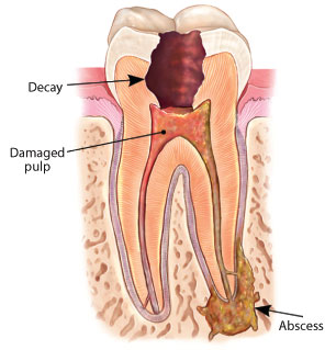 Root Canal Abscess