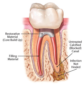 root canal retreatment How to recognize the side effects of Root Canal Treatments