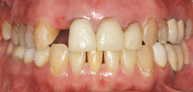 After braces.