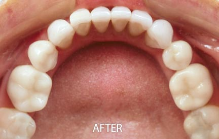 After Invisalign treatment.