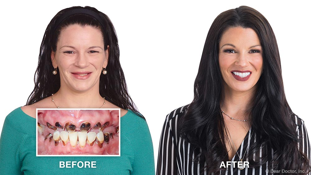 Cara smile makeover before and after.