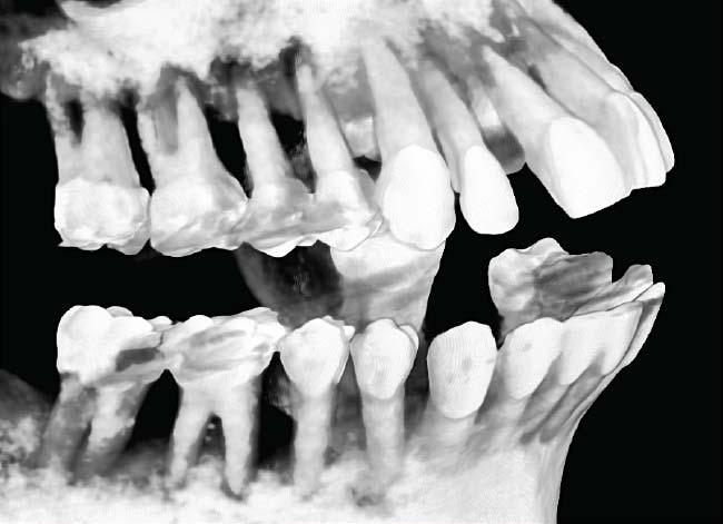 Celeste CAT scan x-ray showing extensive bone loss (left).