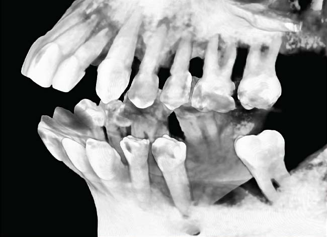 Celeste CAT scan x-ray showing extensive bone loss (right).