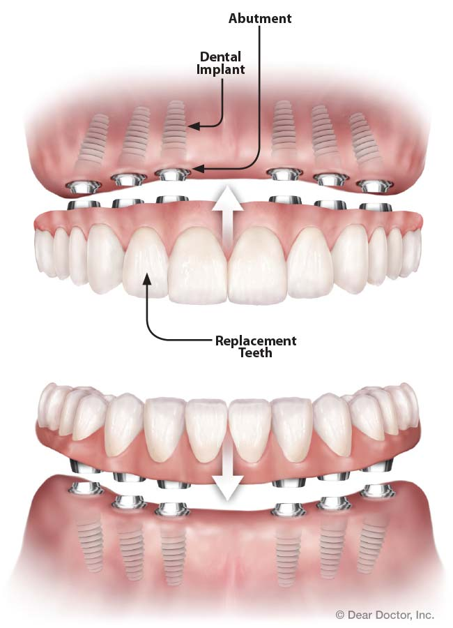 Celeste implant-supported teeth.