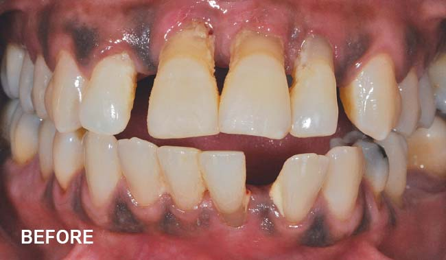 Celeste before treatment - periodontal disease.