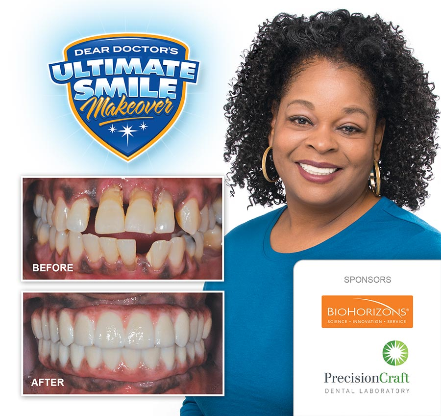 Celeste smile makeover before and after.