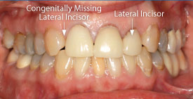 Congenitally missing lateral incisor.
