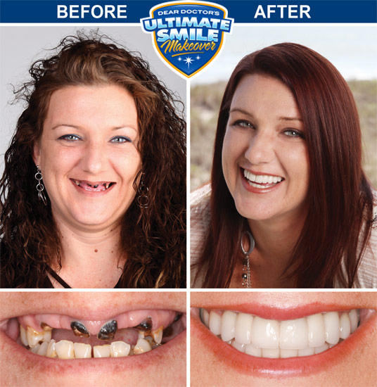 Smile Makeover Contest Winner - Heather - Cosmetic Dental Makeover