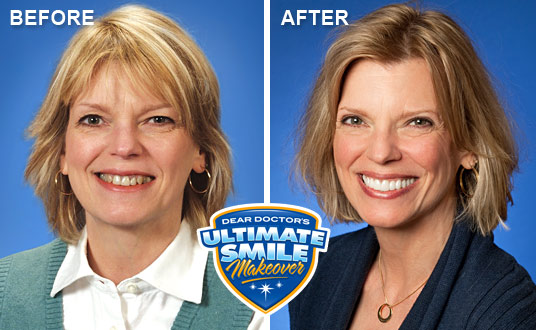 Dear Doctor s 3rd smile makeover contest winner results. Smile Makeover Contest Winner   Lorna   Cosmetic Dental Makeover
