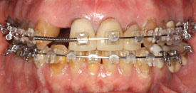 During orthodontic braces treatment.