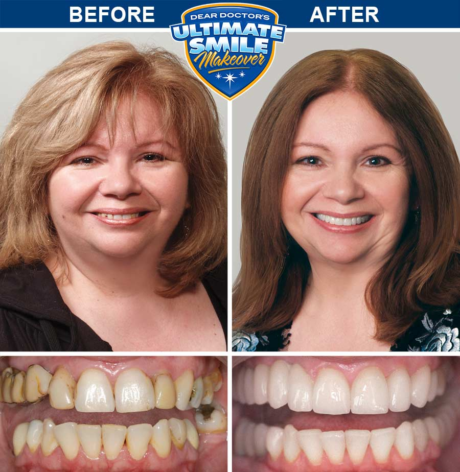 Smile makeover before and after.