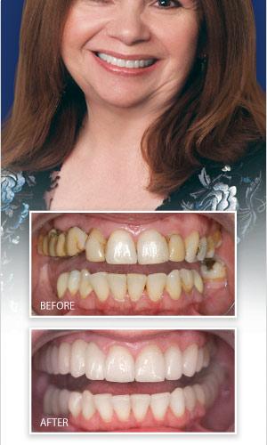 Celebrity dental makeovers photos