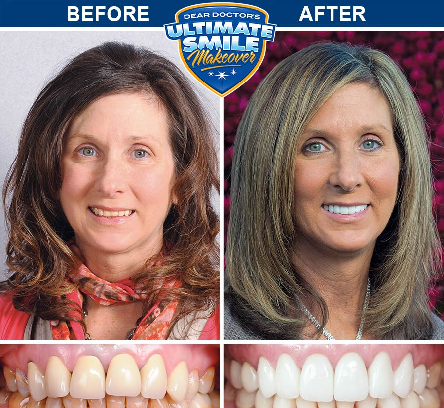 Smile makeover before and after - Sue.