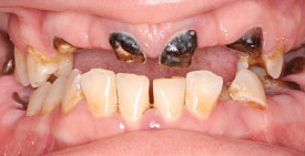 tooth decay before smile makeover.